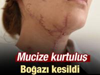 İstanbul'da vahşetten mucize kurtuluş!