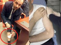 Bacağından ısırılan AK Partili vekil öyle bir fotoğraf paylaştı ki!