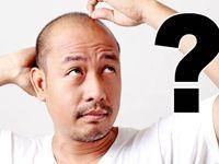Kimler Saç Ektirebilir? İşte cevabı